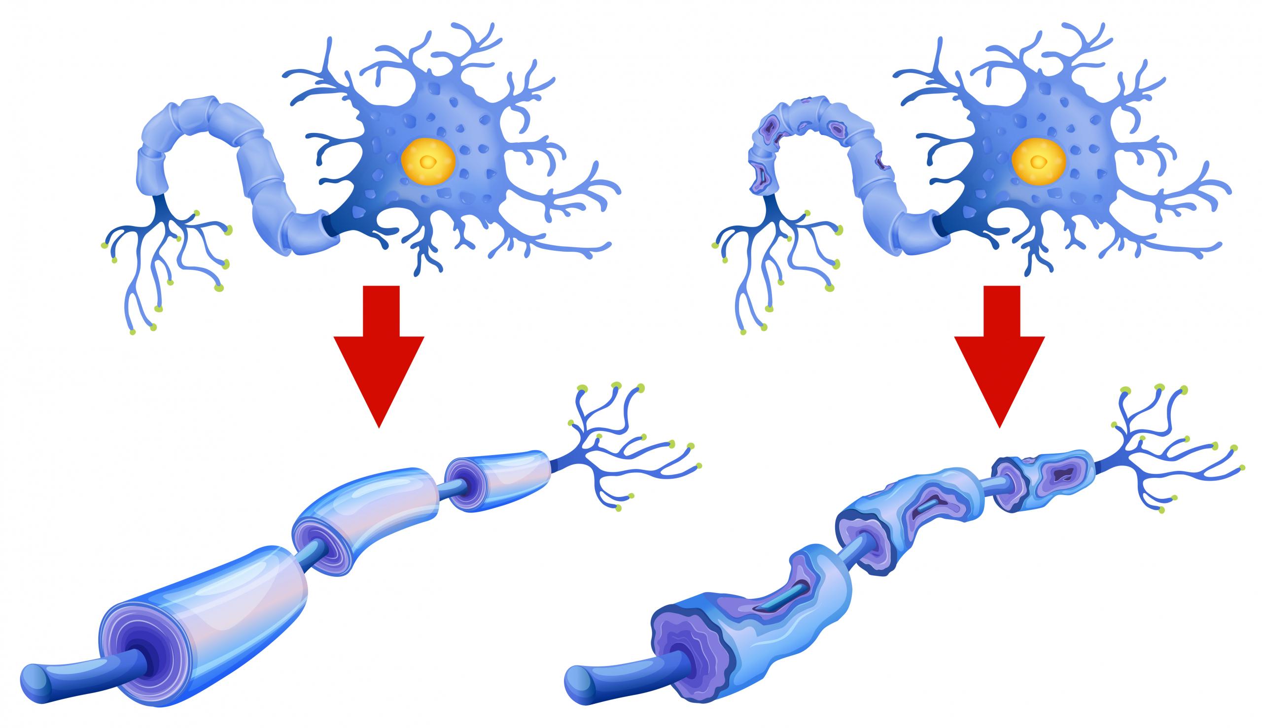 مرض التصلب اللويحي المتعدد | المرض الذي يصيب أي جزء في جسم الإنسان