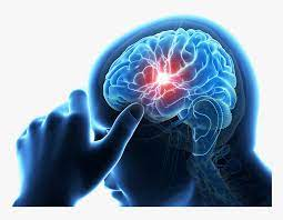 علامات السكتة الدماغية